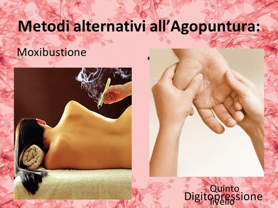 Metodi alternativi all'Agopuntura: