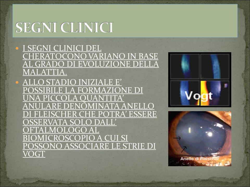 I SEGNI CLINICI DEL CHERATOCONO VARIANO IN BASE AL GRADO DI EVOLUZIONE DELLA MALATTIA.