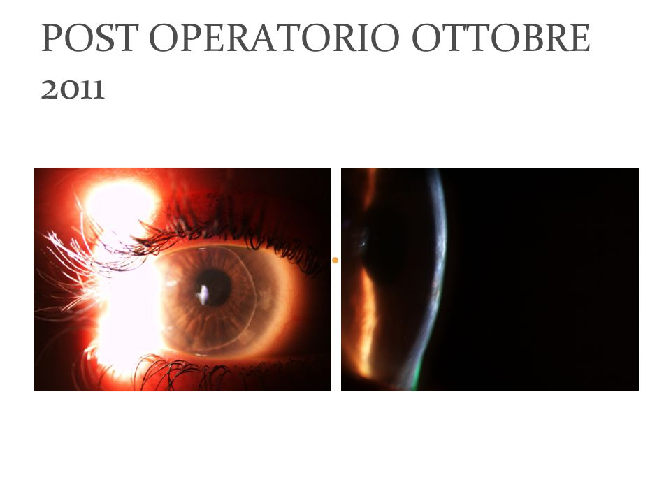 POST OPERATORIO OTTOBRE 2011