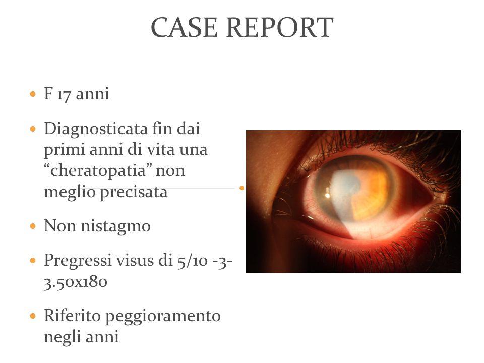 CASE REPORT F 17 anni. Diagnosticata fin dai primi anni di vita una cheratopatia non meglio precisata.