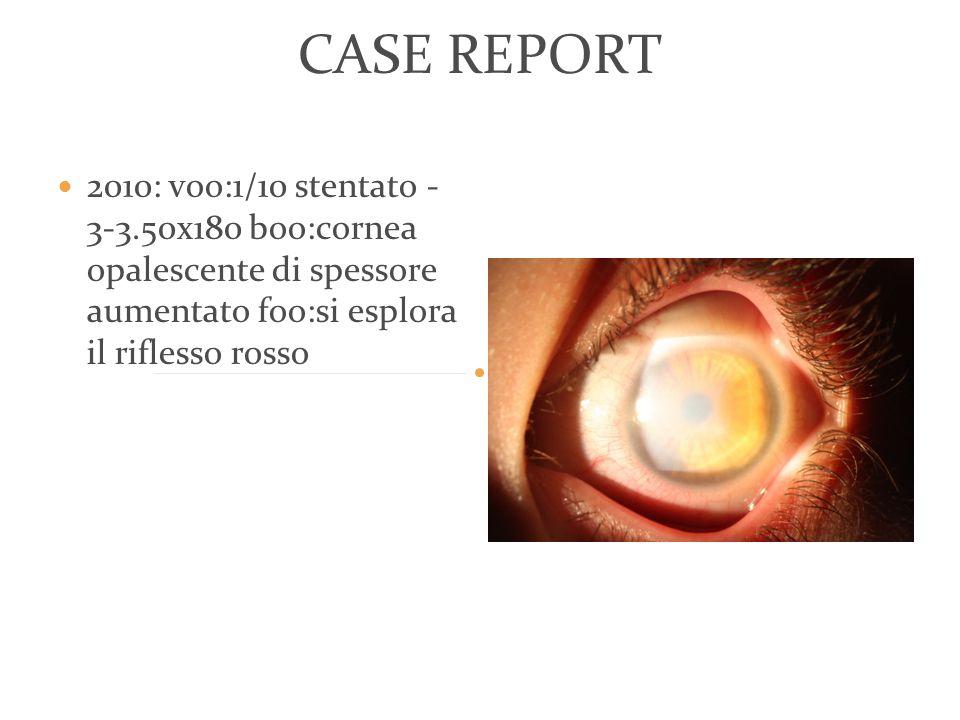 CASE REPORT 2010: voo:1/10 stentato -3- 3.50x180 boo:cornea opalescente di spessore aumentato foo:si esplora il riflesso rosso.