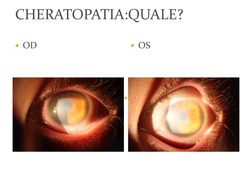 CHERATOPATIA:QUALE OD OS