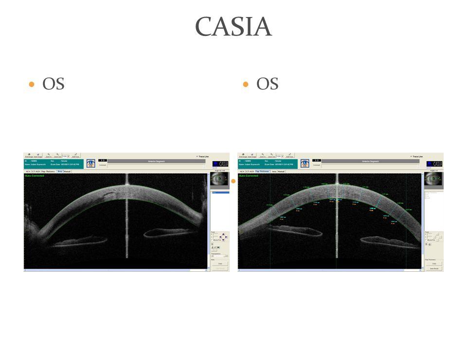 CASIA OS OS