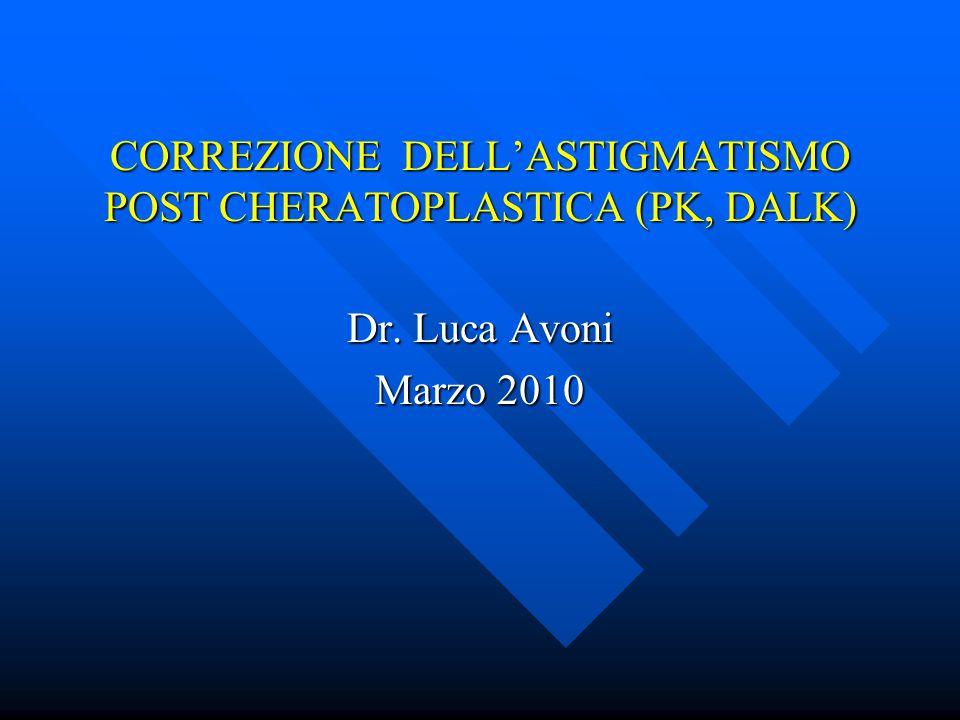 CORREZIONE DELL'ASTIGMATISMO POST CHERATOPLASTICA (PK, DALK)