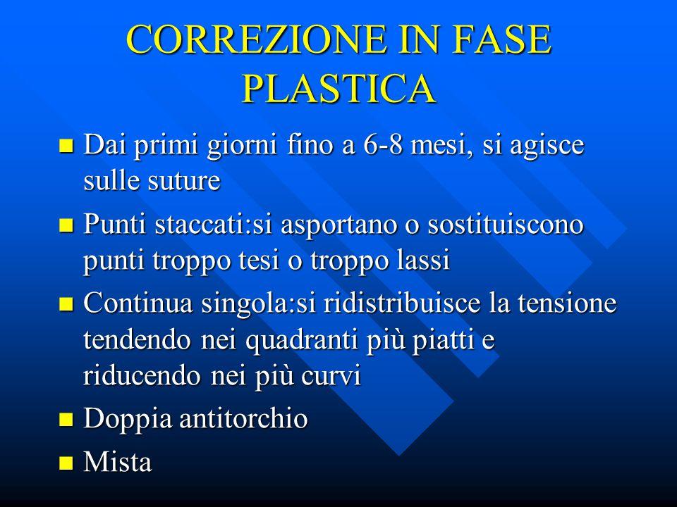 CORREZIONE IN FASE PLASTICA
