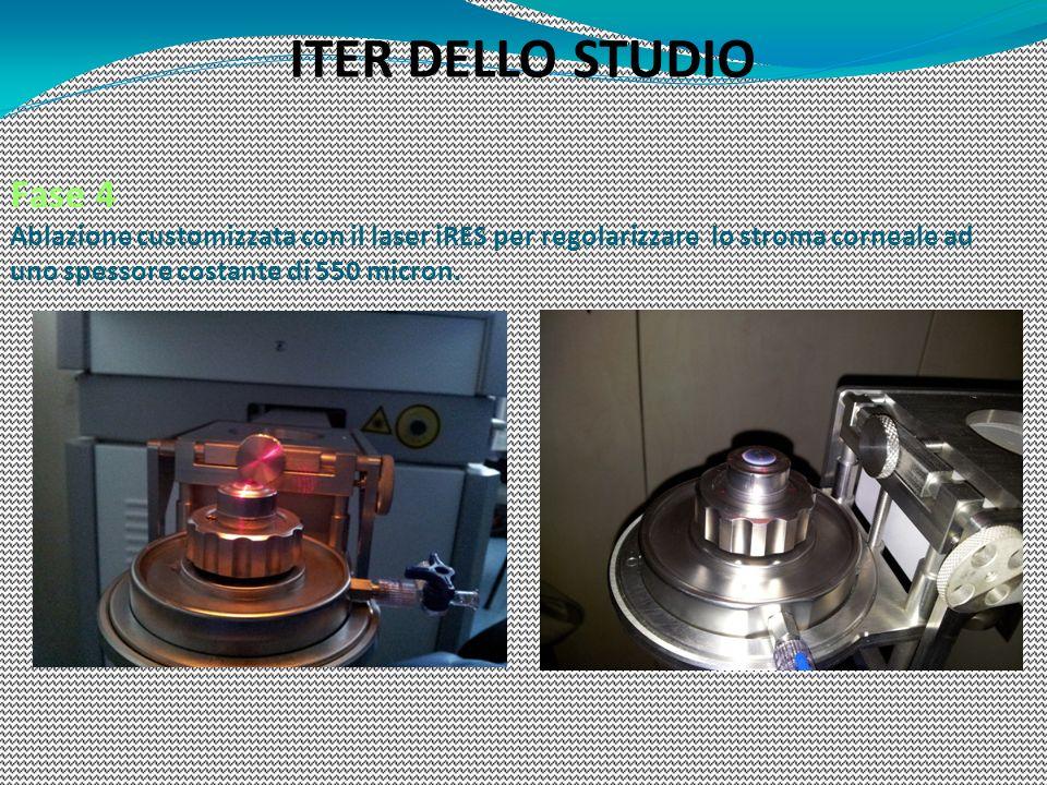 ITER DELLO STUDIO Fase 4 Ablazione customizzata con il laser iRES per regolarizzare lo stroma corneale ad uno spessore costante di 550 micron.