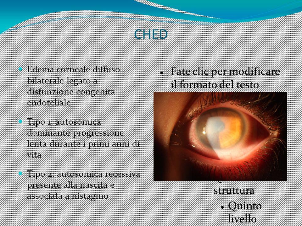 CHED Edema corneale diffuso bilaterale legato a disfunzione congenita endoteliale.