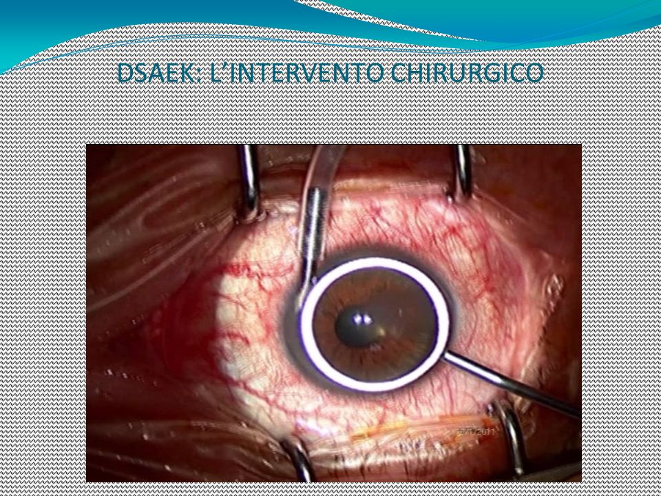 DSAEK: L'INTERVENTO CHIRURGICO