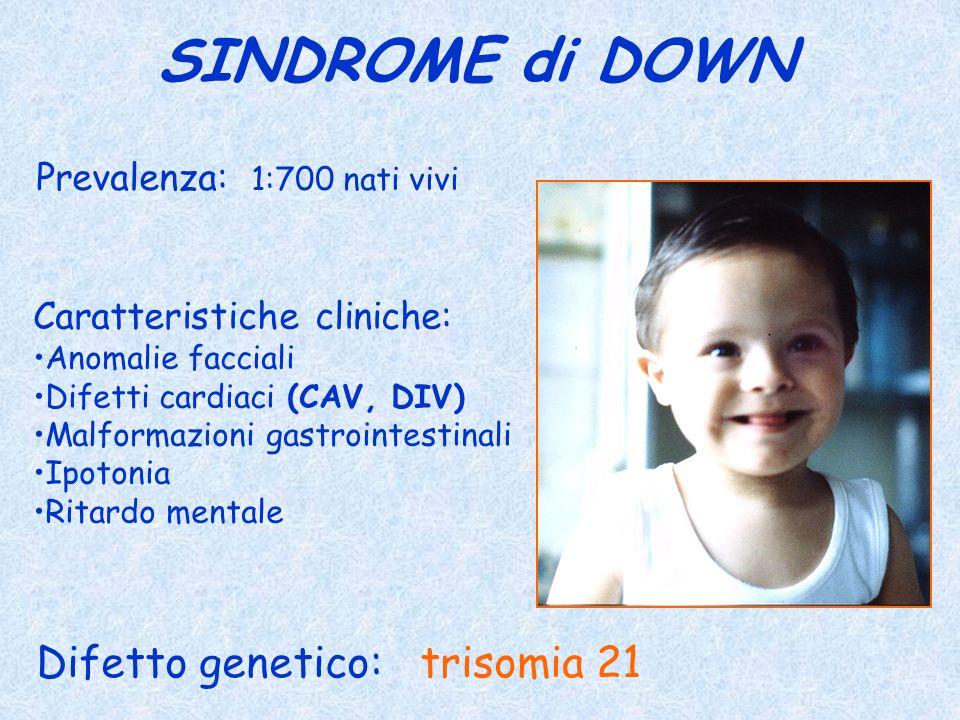 SINDROME di DOWN Difetto genetico: trisomia 21