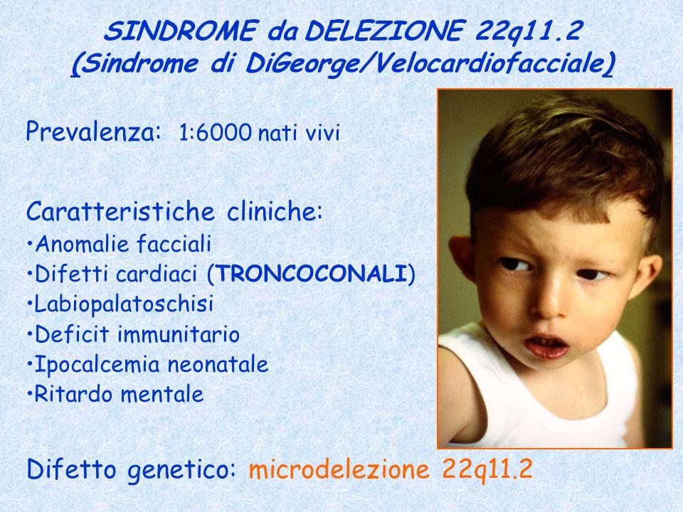 (Sindrome di DiGeorge/Velocardiofacciale)