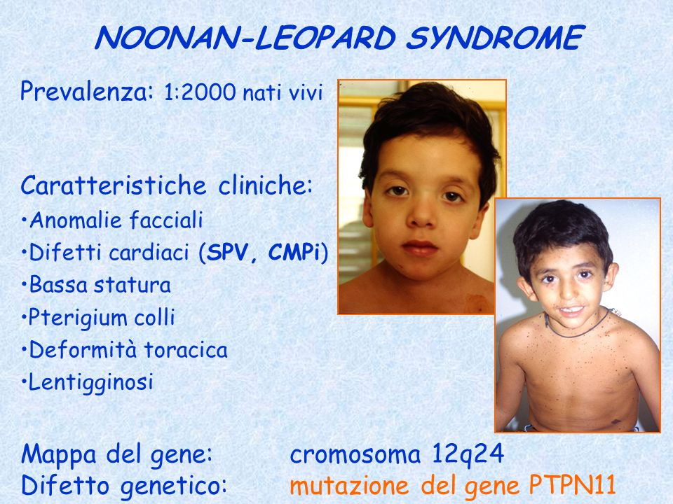NOONAN-LEOPARD SYNDROME