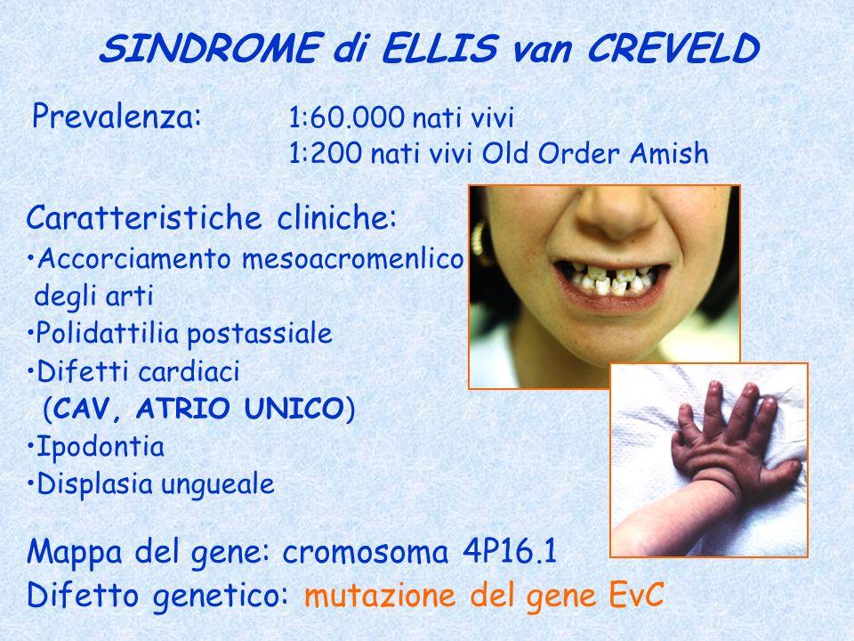 SINDROME di ELLIS van CREVELD