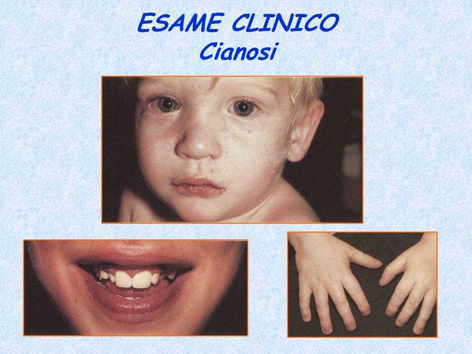 ESAME CLINICO Cianosi
