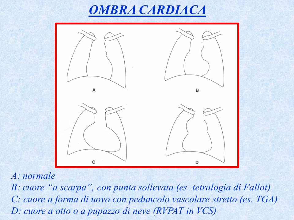 OMBRA CARDIACA A: normale