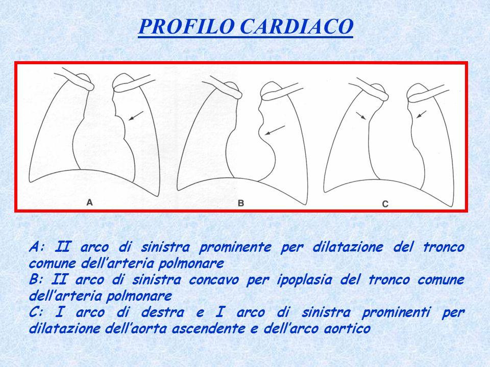PROFILO CARDIACO A: II arco di sinistra prominente per dilatazione del tronco comune dell'arteria polmonare.