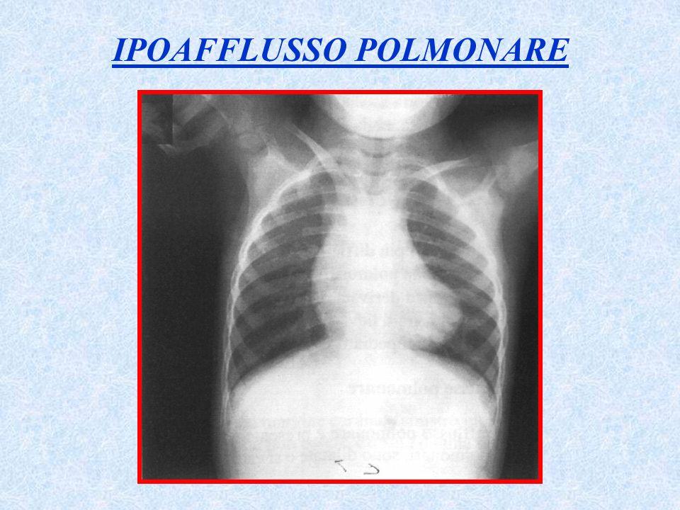 IPOAFFLUSSO POLMONARE