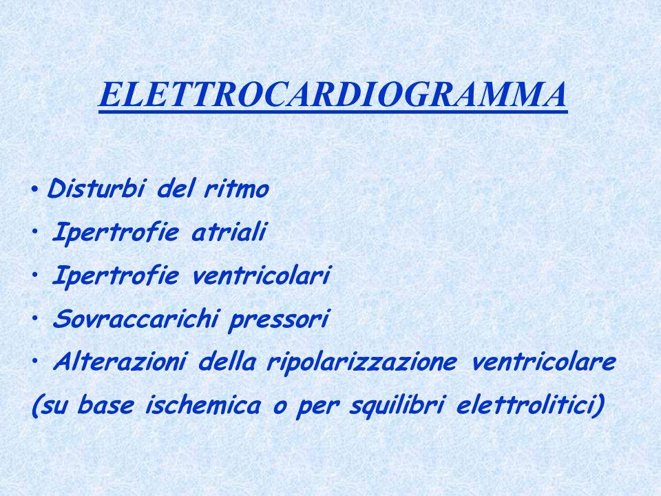 ELETTROCARDIOGRAMMA Disturbi del ritmo Ipertrofie atriali