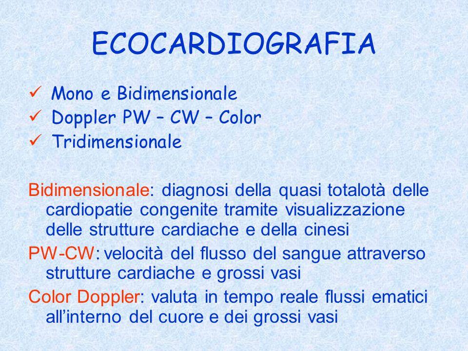 ECOCARDIOGRAFIA Mono e Bidimensionale Doppler PW – CW – Color
