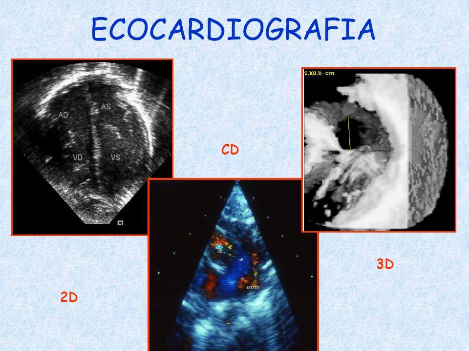 ECOCARDIOGRAFIA CD 3D 2D