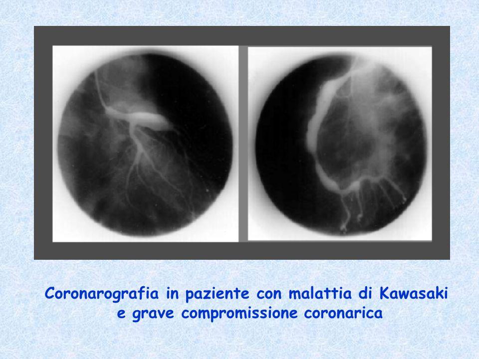 Coronarografia in paziente con malattia di Kawasaki