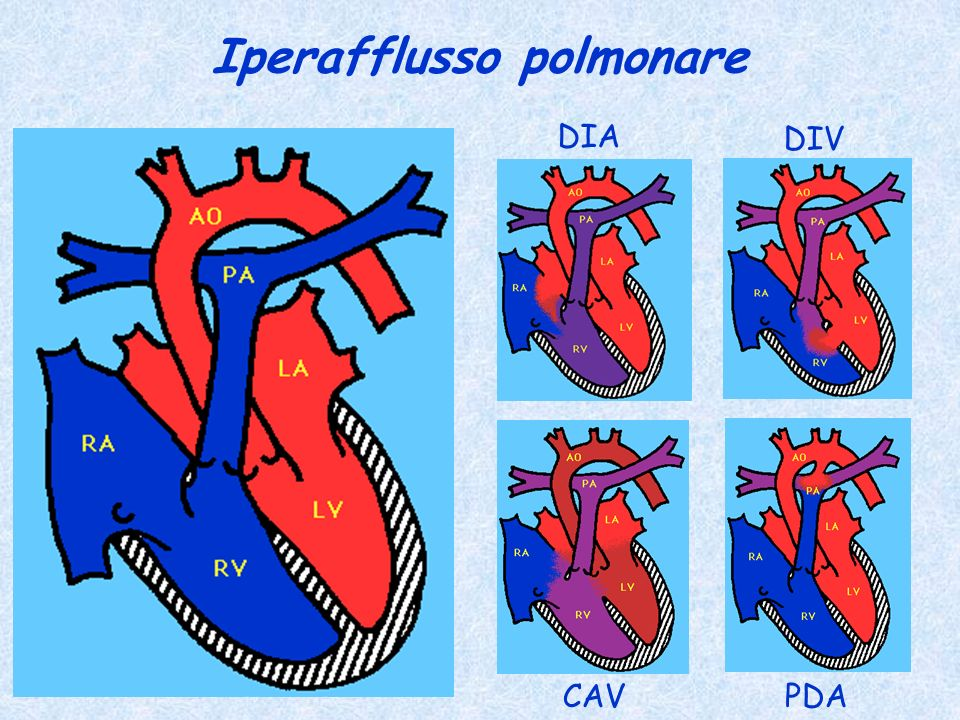 Iperafflusso polmonare