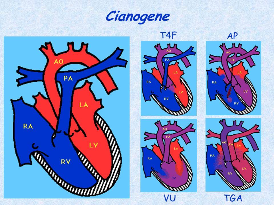 Cianogene T4F AP VU TGA