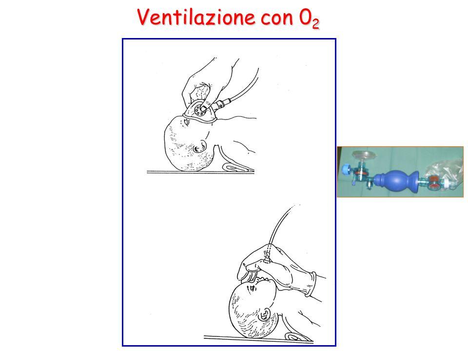 Ventilazione con 02