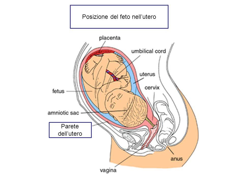 Posizione del feto nell'utero