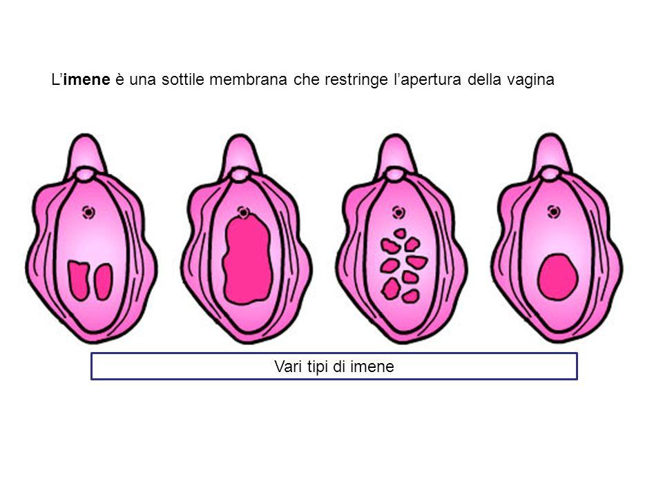 L'imene è una sottile membrana che restringe l'apertura della vagina
