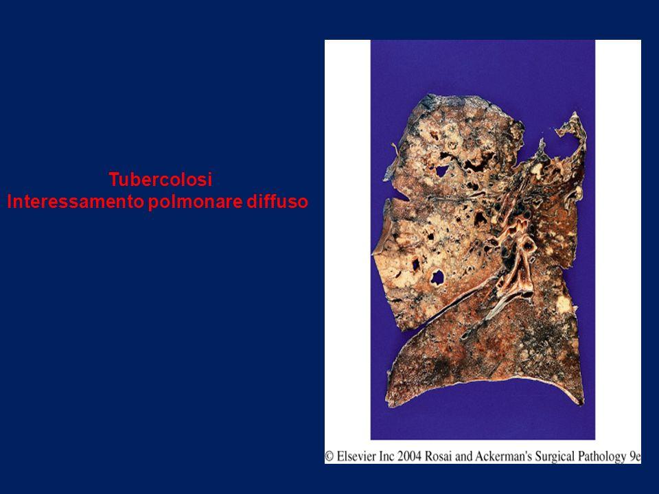 Tubercolosi Interessamento polmonare diffuso