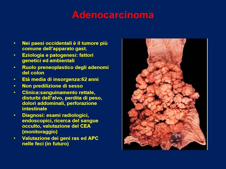 Adenocarcinoma Nei paesi occidentali è il tumore più comune dell'apparato gast. Eziologia e patogenesi: fattori genetici ed ambientali.