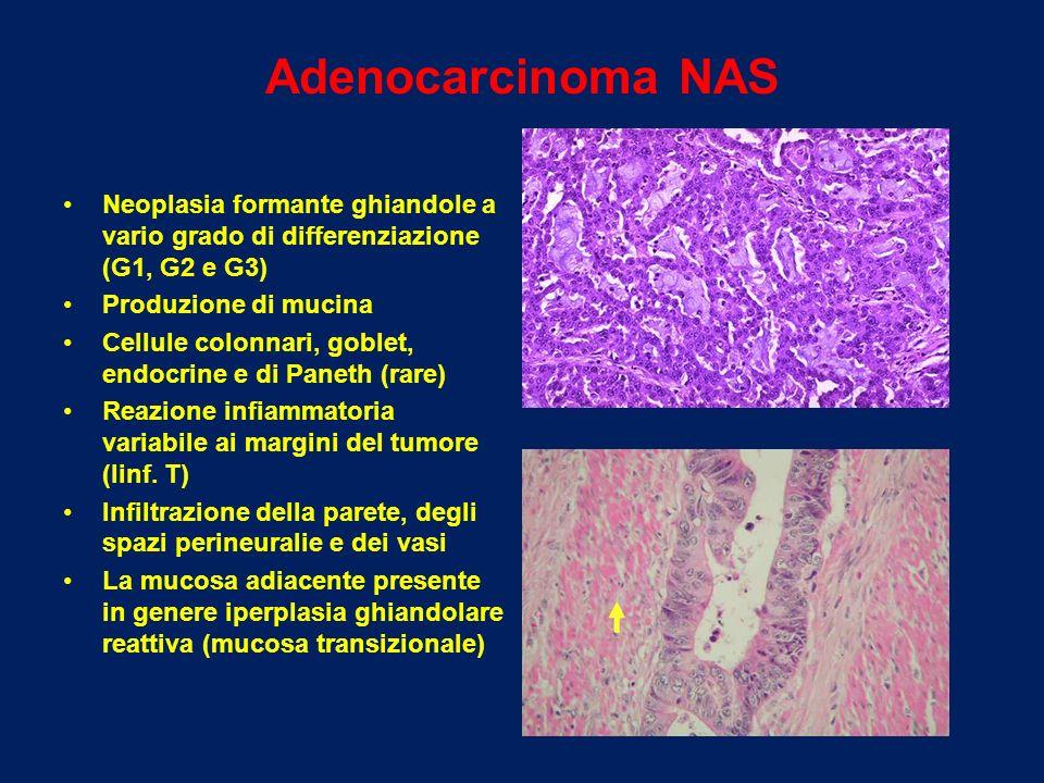 Adenocarcinoma NAS Neoplasia formante ghiandole a vario grado di differenziazione (G1, G2 e G3) Produzione di mucina.