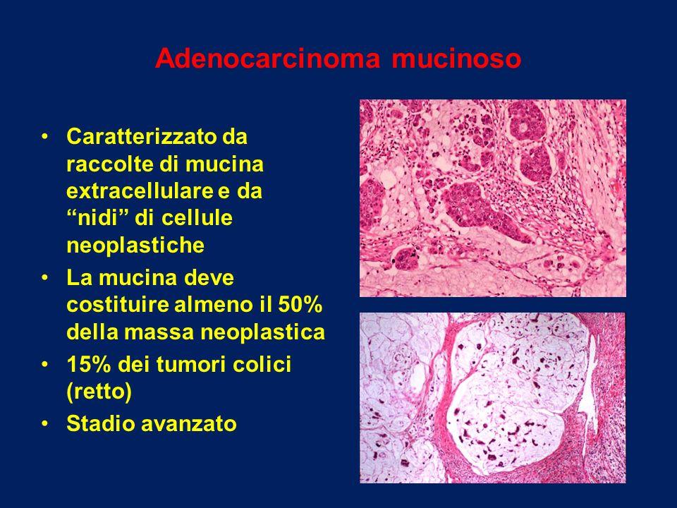 Adenocarcinoma mucinoso