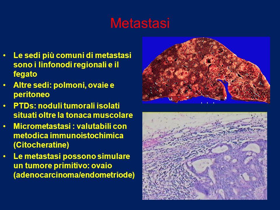 Metastasi Le sedi più comuni di metastasi sono i linfonodi regionali e il fegato. Altre sedi: polmoni, ovaie e peritoneo.