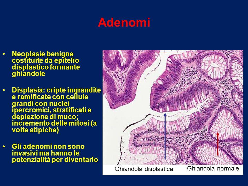 Adenomi Neoplasie benigne costituite da epitelio displastico formante ghiandole.