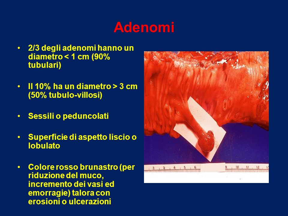 Adenomi 2/3 degli adenomi hanno un diametro < 1 cm (90% tubulari)