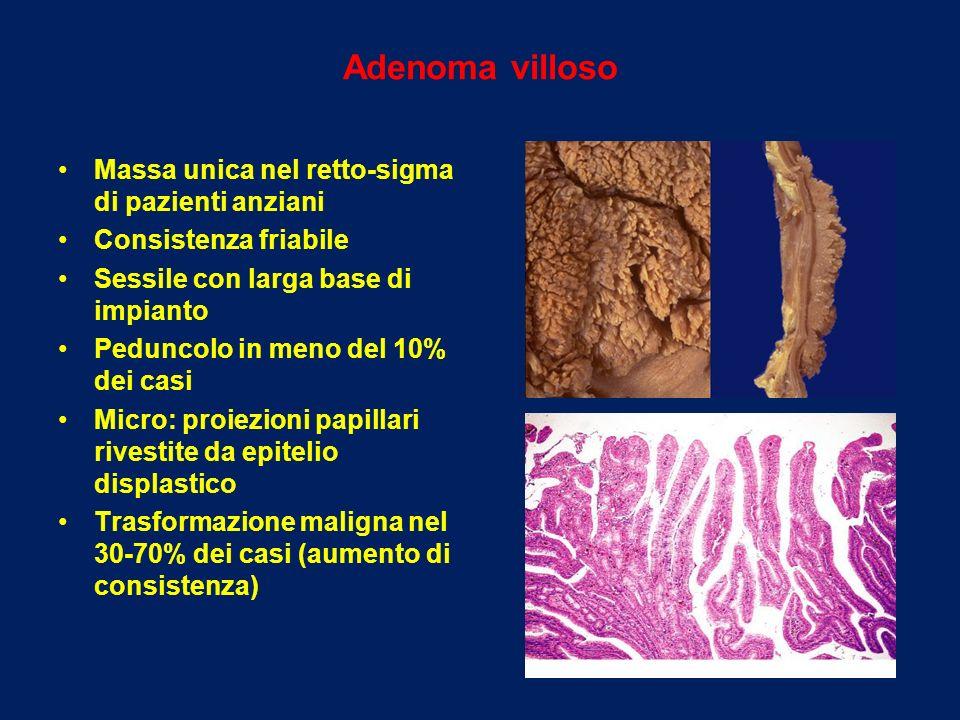 Adenoma villoso Massa unica nel retto-sigma di pazienti anziani