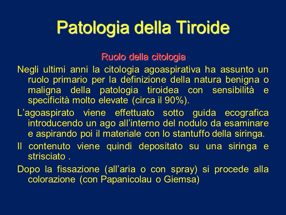 Patologia della Tiroide