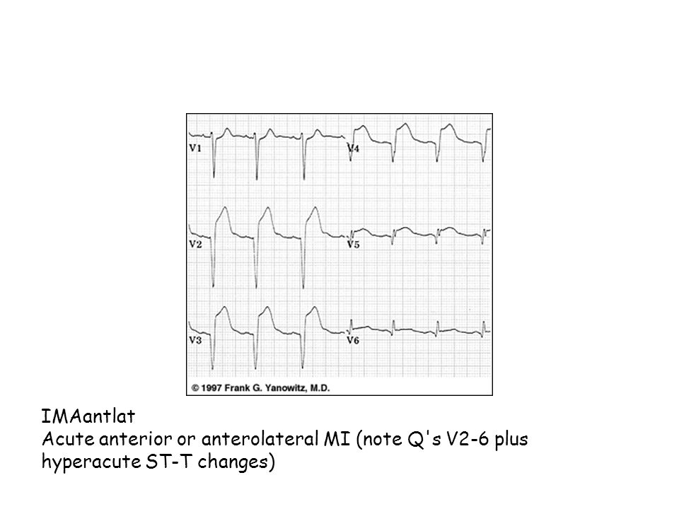 IMAantlat Acute anterior or anterolateral MI (note Q s V2-6 plus hyperacute ST-T changes)