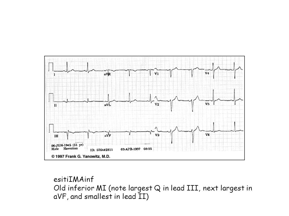 esitiIMAinfOld inferior MI (note largest Q in lead III, next largest in aVF, and smallest in lead II)