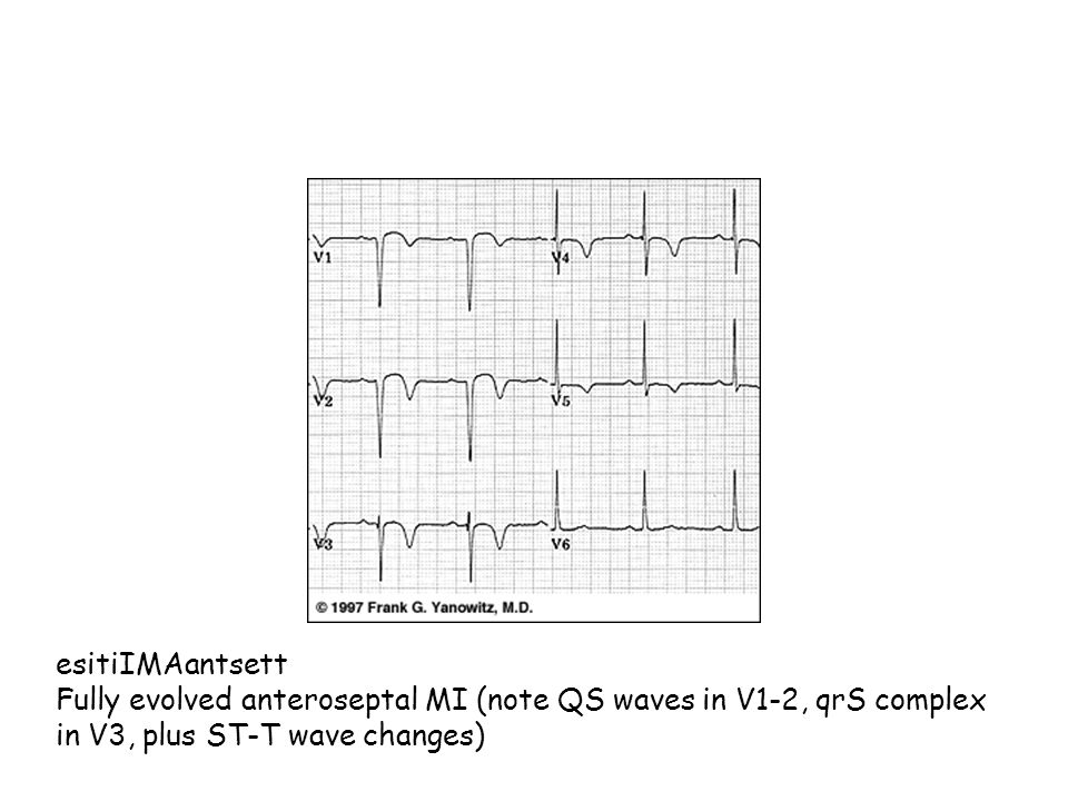 esitiIMAantsett Fully evolved anteroseptal MI (note QS waves in V1-2, qrS complex in V3, plus ST-T wave changes)