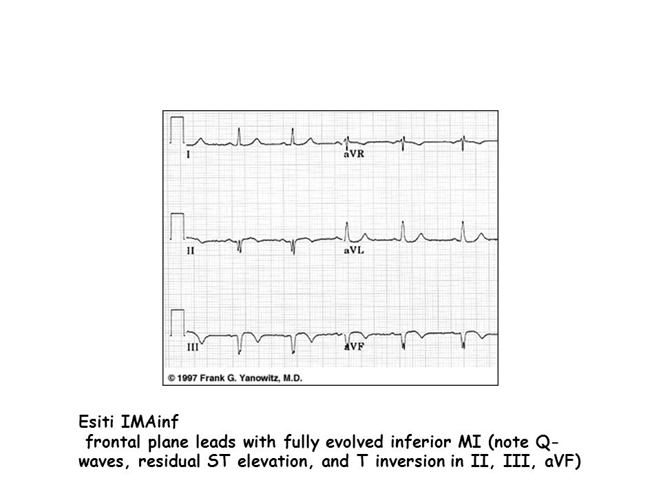 Esiti IMAinf frontal plane leads with fully evolved inferior MI (note Q-waves, residual ST elevation, and T inversion in II, III, aVF)