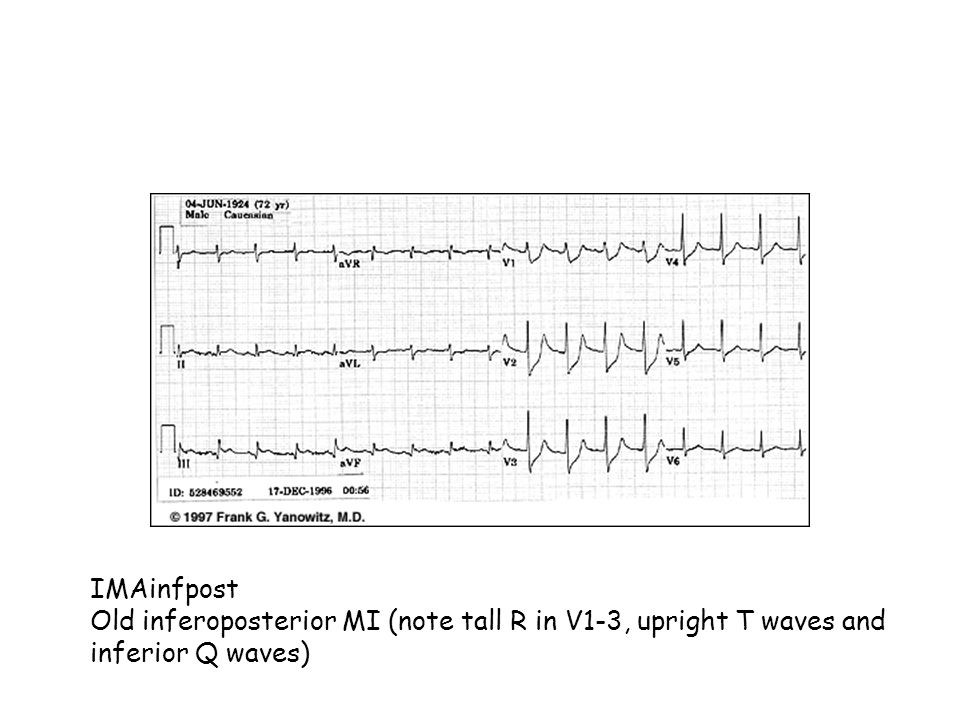 IMAinfpost Old inferoposterior MI (note tall R in V1-3, upright T waves and inferior Q waves)