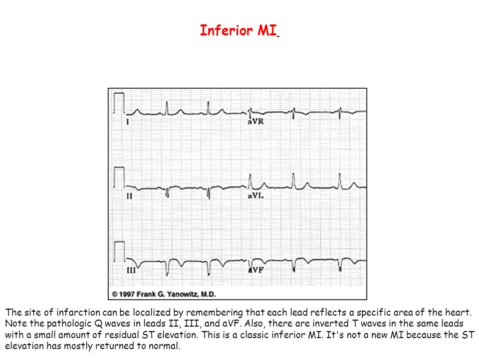Inferior MI The site of infarction can be localized by remembering that each lead reflects a specific area of the heart.