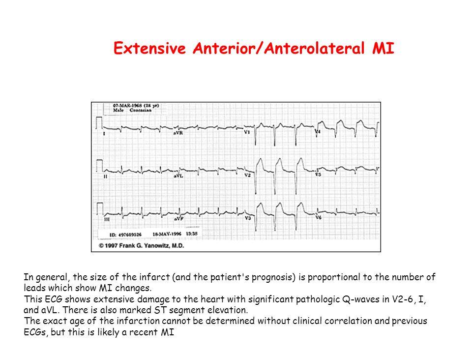 Extensive Anterior/Anterolateral MI