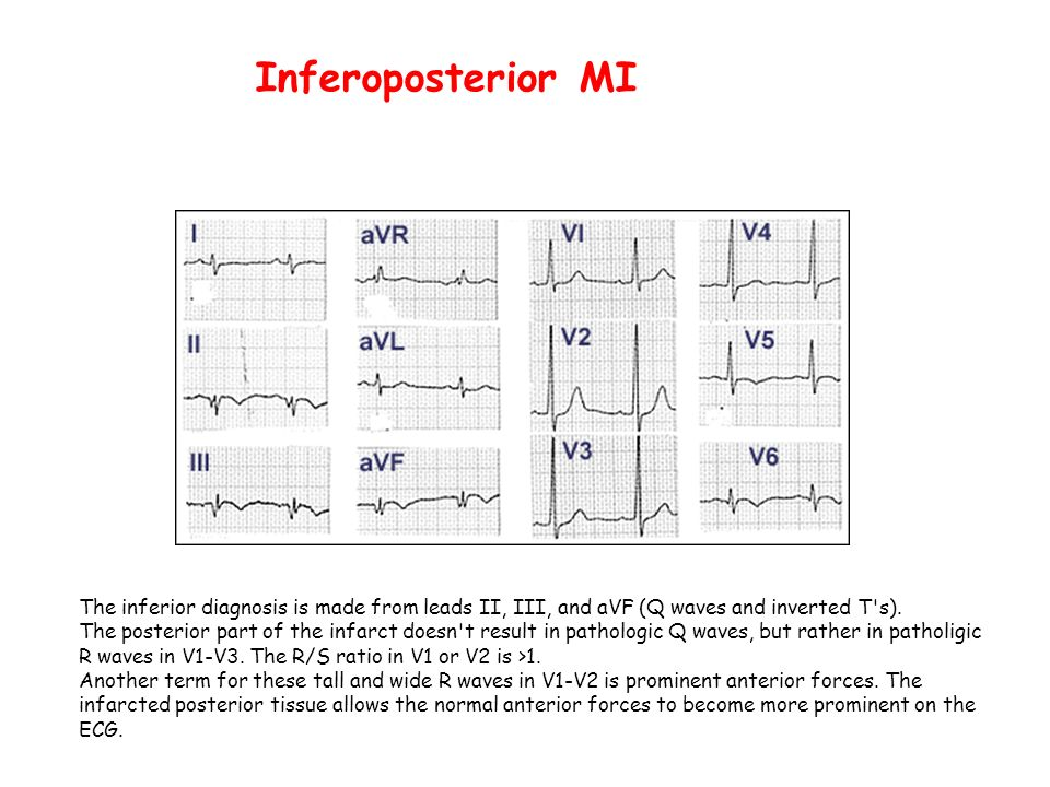 Inferoposterior MIThe inferior diagnosis is made from leads II, III, and aVF (Q waves and inverted T s).