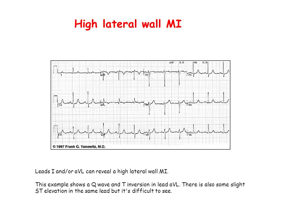 High lateral wall MI Leads I and/or aVL can reveal a high lateral wall MI.