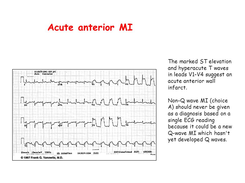 Acute anterior MIThe marked ST elevation and hyperacute T waves in leads V1-V4 suggest an acute anterior wall infarct.