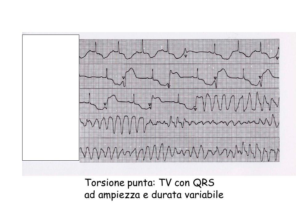 Torsione punta: TV con QRS