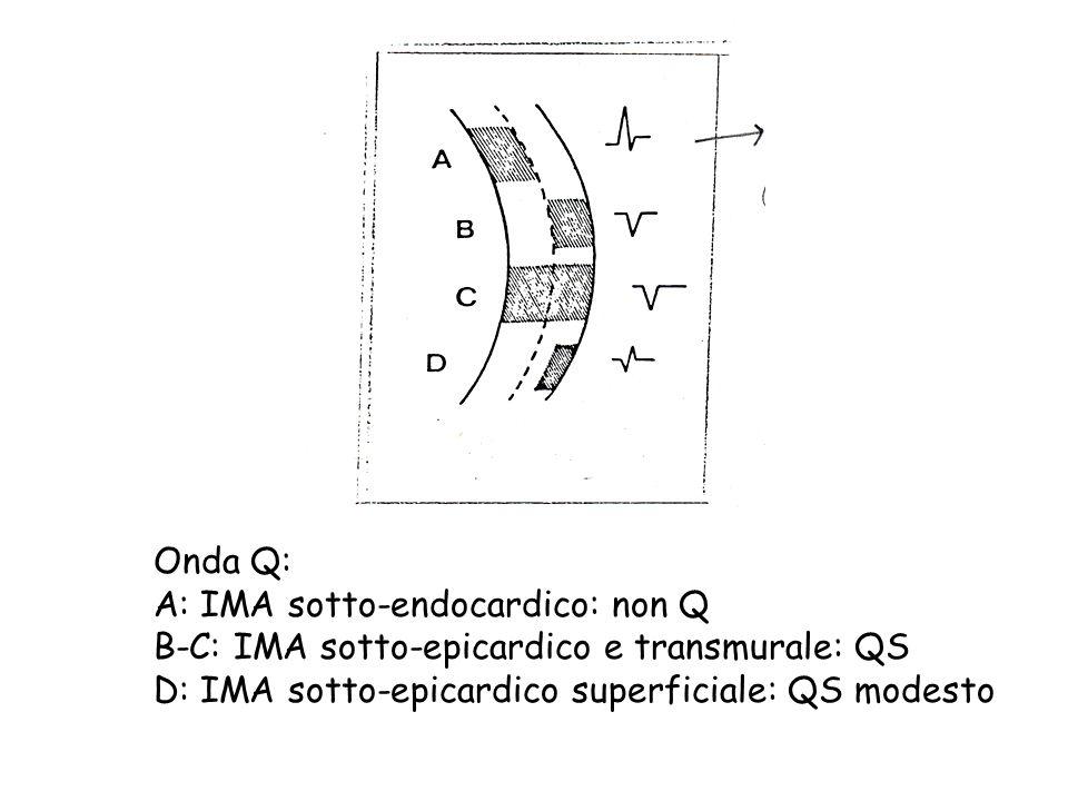 Onda Q: A: IMA sotto-endocardico: non Q. B-C: IMA sotto-epicardico e transmurale: QS.